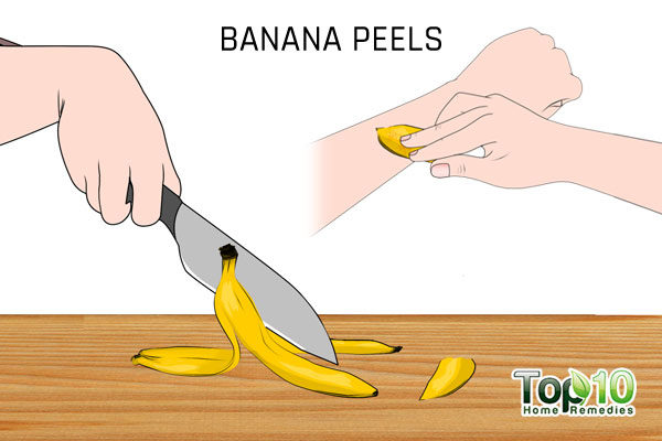 banana peels to treat flat warts