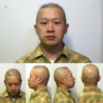 Hair Loss for men!